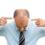What To Do When You Spot A Growing Number of Bald Patches In Scalp?