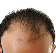 Side Effects of Scalp Micropigmentation