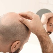 Does Scalp Micropigmentation Cause Any Side Effects? Here Is The Truth