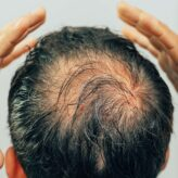 Hair loss and your living environment